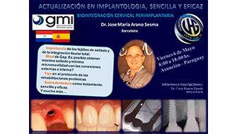El Dr. José Mª Arano, DIRECTOR DE CLINICA ARANO, ha sido invitado a dictar cursos en distintas universidades de Chile y Paraguay, durante el mes de mayo de 2016