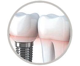 Implantología. Cirugía y Prótesis