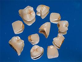 protesis1